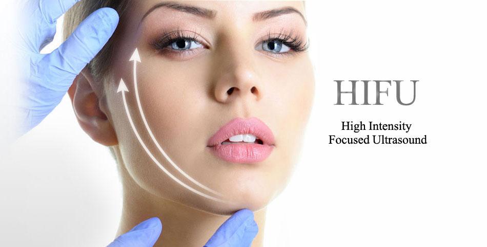 HIFU-lecce-lifting-viso